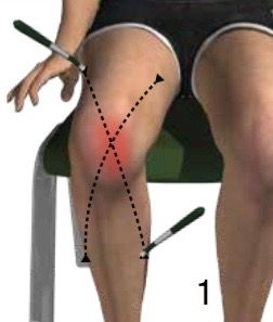 Alpha-Stim smart probes on a knee